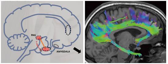Desde el punto de vista de la neurociencia, las posibles reacciones de la víctima a una situación de inminente peligro, son muy bien conocidas.