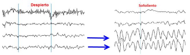 tratamiento del insomnio con neurofeedback