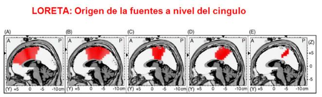 Tratamiento ansiedad con Neurofeedback en Barcelona