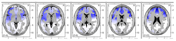 tratamiento-alcoholismo-neurofeedback