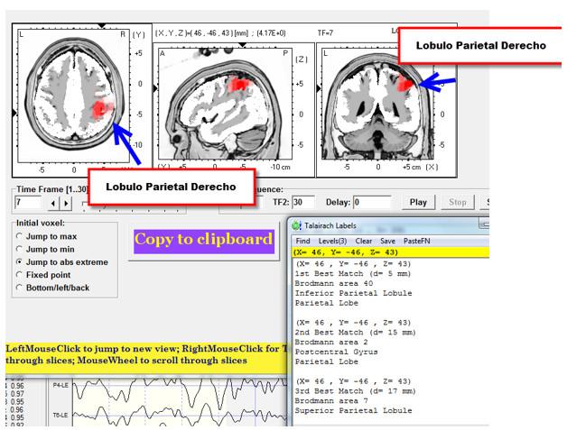 tratamiento-lesiones-cerebrales-neurofeedback