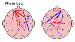 lesiones-cerebrales-neurofeedback