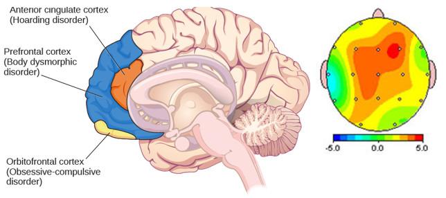 tratamiento-trastorno-obsesivo-compulsivo-neurofeedback