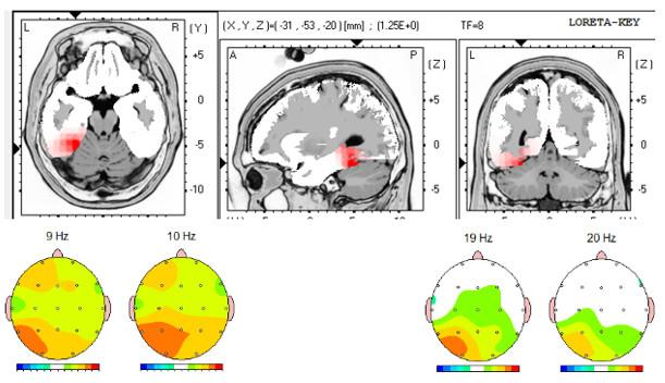 El Neurofeedback también mejora las conexiones